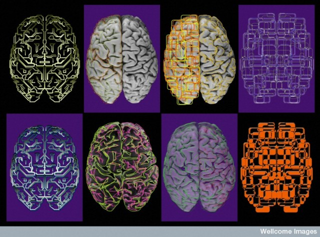 B0003260 Composite artwork - 8 images of the brain